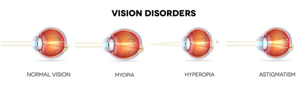 vision-disorders