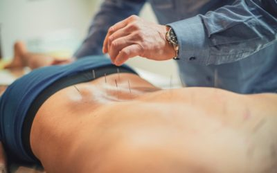 Acupuncture and Male Infertility