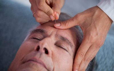 Effects of Acupuncture on Alzheimer's